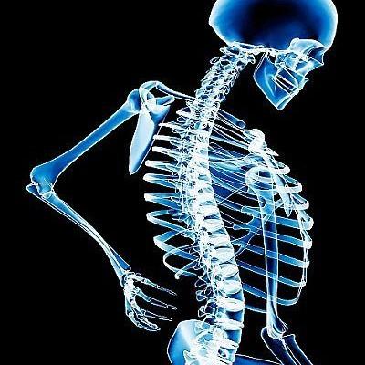 Dia Mundial da Osteoporose alerta para perigo da doença