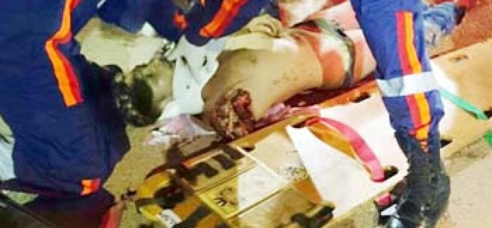 Motoqueiro morre em acidente e tem o braço decepado