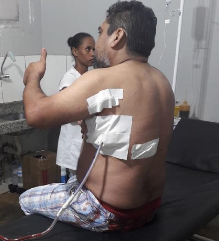 Policial levou quatro facadas, foi internado no HMNP onde passou por cirurgia pra retirada da faca próximo ao pulmão.(Foto>Divulgação Policia)