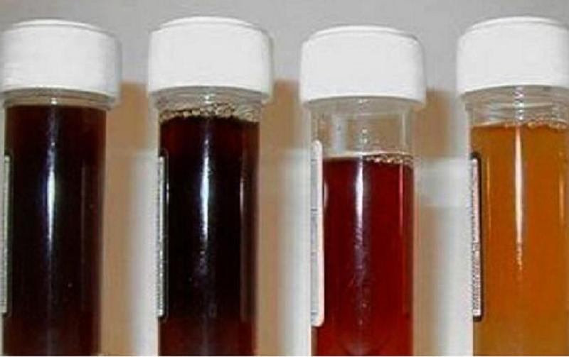 urina preta (Divulgação)